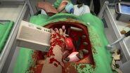 Surgeon Simulator - PS4 Announcement