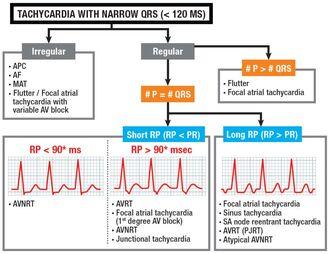 Kitsa QRS-ga kulgevate tahhükardiate diagnoosimise algoritm