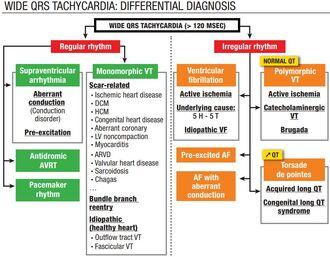 Laia QRS kulgevate tahhükardiate diagnoosimise algoritm