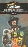 1991-brainofmorbius