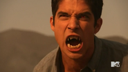 5x13 Scotts Alpha eyes and fangs