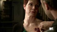 2x09 Victoria Argent werewolf bite