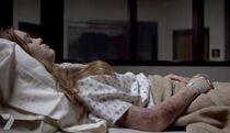 Lydia's Bruises