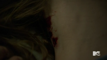 Teen Wolf Season 5 Episode 11 The Last Chimera Claw Marks in Lydia's Neck