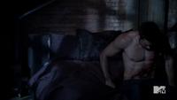 Teen Wolf Season 3 Episode 6 Motel California Tyler Hoechlin Derek's Injuries