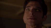 Teen Wolf Season 3 Episode 8 Visionary Tyler Posey Scott McCall takes away the pain