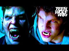 Löwenmensch and Scott S1 Red Eyes- Teen Wolf FAQs