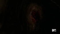 Teen Wolf Season 5 Episode 11 The Last Chimera Lydia Has a Hole in Her Head