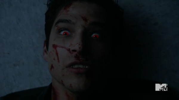 Teen Wolf Season 5 Episode 10 Status Asthmaticus Scott comes back.png