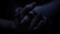 Teen Wolf Season 3 Episode 8 Visionary Hands