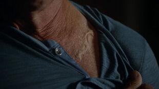 Liden-Ashby-Sheriff-Stilinski-scar-Teen-Wolf-Season-6-Episode-3-Sundowning