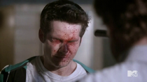 Teen Wolf Season 4 Episode 7 Weaponized Stiles blood spray