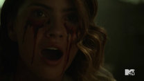 Teen Wolf Season 5 Episode 14 The Sword and the Spirit Malia bleeding