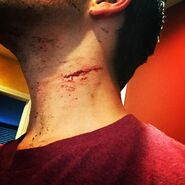 Teen Wolf Season 5 Behind the Scenes Tyler Posey blood neck hickey 6th Street 030715
