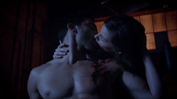 Teen Wolf Season 3 Episode 6 Motel California Tyler Hoechlin Haley Webb Derek Hale Jennifer Blake Healing Kiss.png