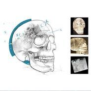 Descripción del Cráneo