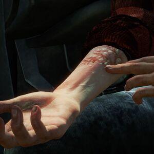 Ellies bite (spring).jpg