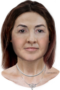 East Sussex Jane Doe