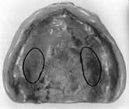 Vernon County Jane Doe maxillary denture
