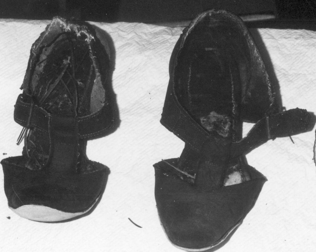 Jefferson County Jane Doe (1972)