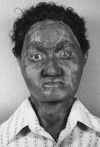 Richland County John Doe (1983)