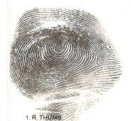 Harrison County John Doe (2000)