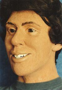 8702242 facial reconstruct d.jpg