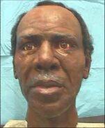 Fulton County John Doe (2000)