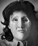 Autauga County Jane Doe (1986)