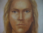 Composite of Michaelas abductor