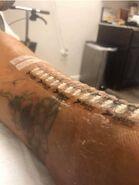 Alicia Griffin Surgical Scar