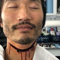 11-07-2019~Soji Arai neck