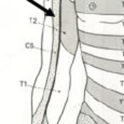 Nerves and vessels of the upper limb