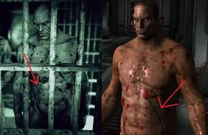 The Brothers' scars
