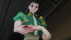 Illumi's broken arm