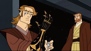 Anakin Skywalker new arm