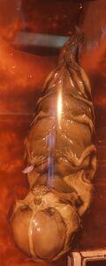 Second Fetus