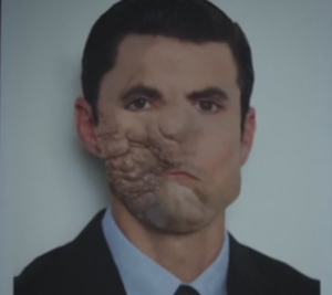 Ogre pre-surgery face