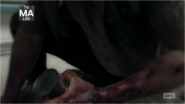 5x05 Bloody Hand