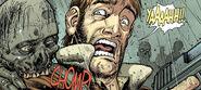 """Issue 4 Deluxe - Rick gets """"bitten"""""""