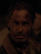 516 Rick Bloodied