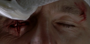 Governor Gouged Eye