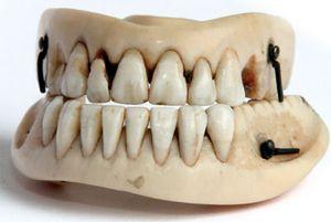 Lisa del Giocondo's Teeth