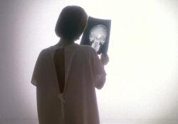 Scully radiographie Journal de Mort cancer.jpg