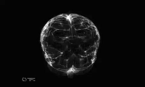 Diagrama del cerebro infectado